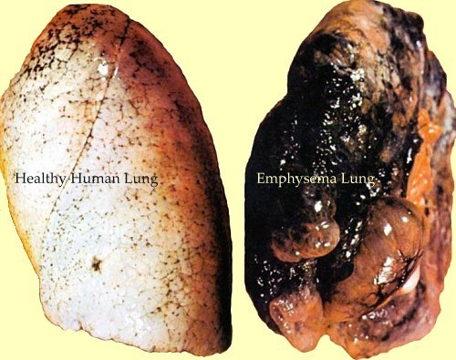 Real Human Lungs